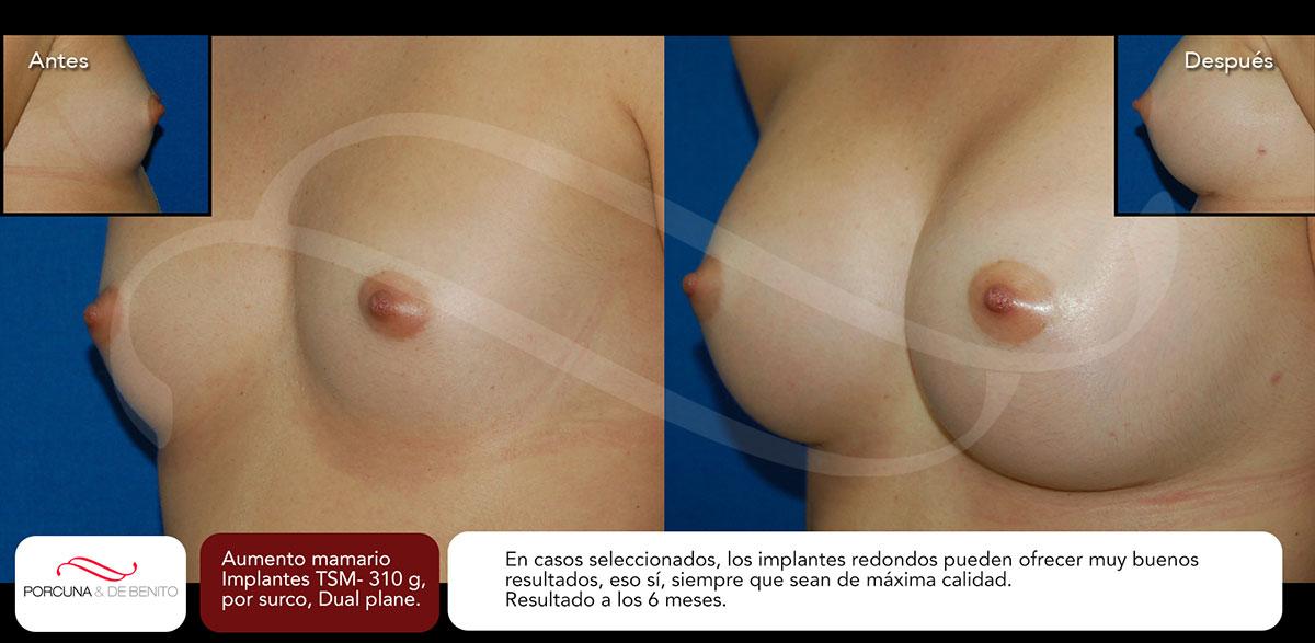 Aumento mamario. Implantes TSM-310 g, por surco, Dual plane