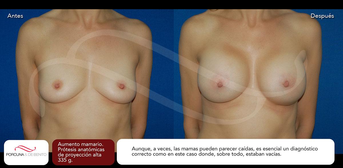 Aumento mamario. Prótesis anatómicas de proyección alta 335 g.