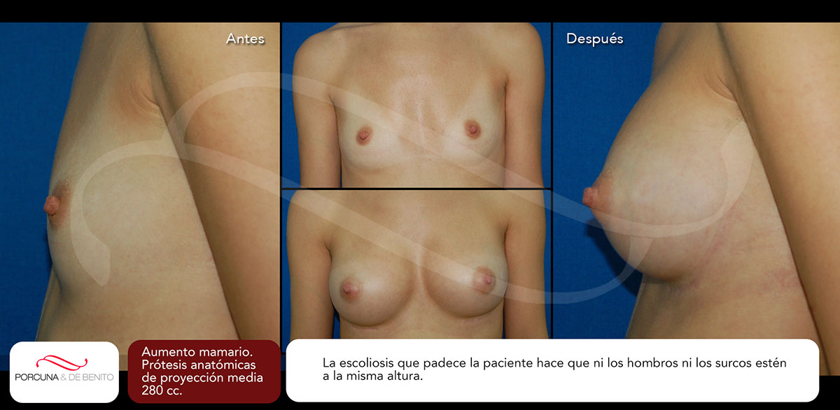 Aumento mamario. Prótesis anatómicas de proyección media 280 cc.