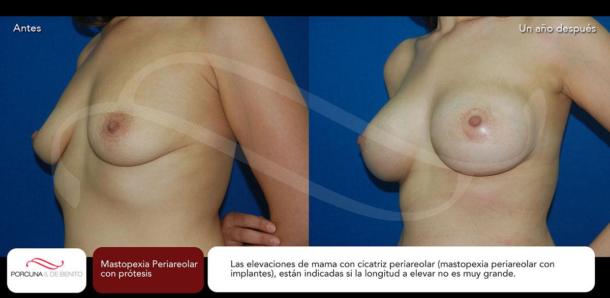 Mastopexia Periareolar con prótesis