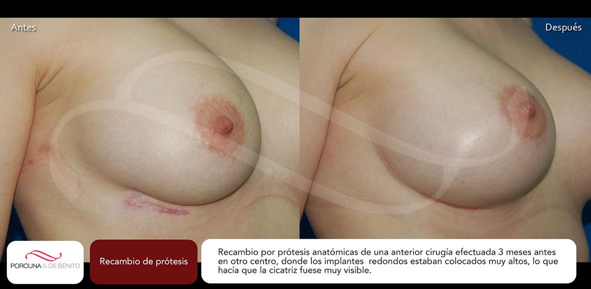 Recambio de prótesis